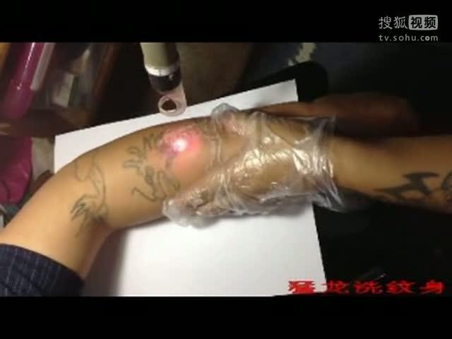 珠海洗纹身的广播